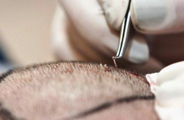 Hair Transplantation (HT)