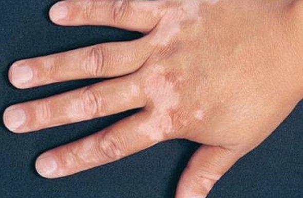 Vitiligo Punch Grafting